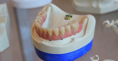 Vrhunski zobni fiksni aparati na spletnih prodajnih policah