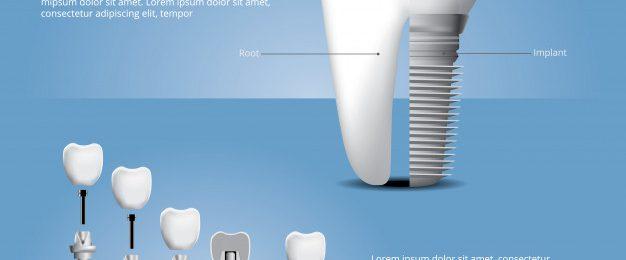 Zobni implantat cena
