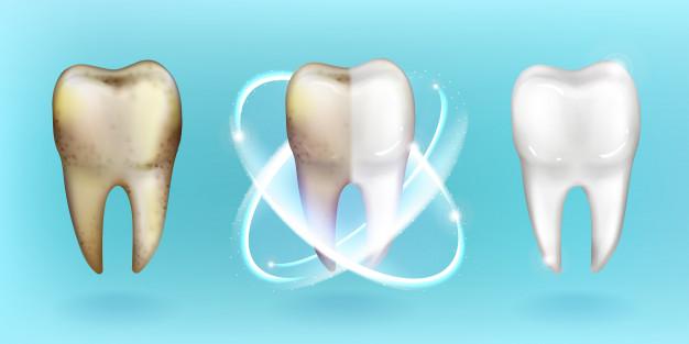 Za beljenje zob se odloča vse več zvezdnikov